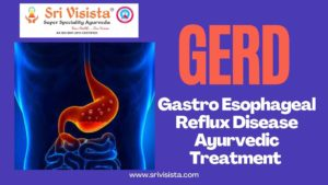 Read more about the article GERD-Gastro Esophageal Reflux Disease Ayurvedic Treatment